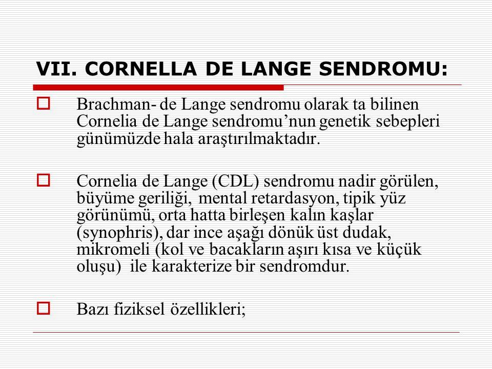VII. CORNELLA DE LANGE SENDROMU: