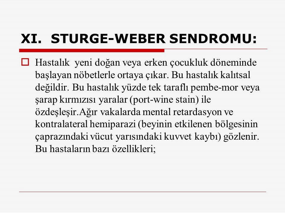 XI. STURGE-WEBER SENDROMU: