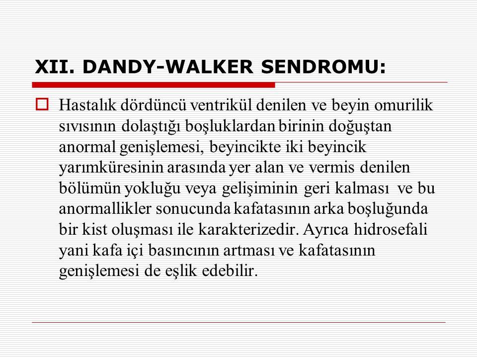 XII. DANDY-WALKER SENDROMU: