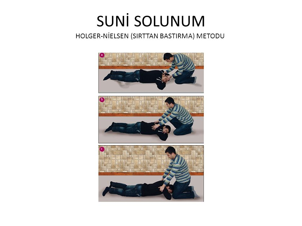SUNİ SOLUNUM HOLGER-NİELSEN (SIRTTAN BASTIRMA) METODU