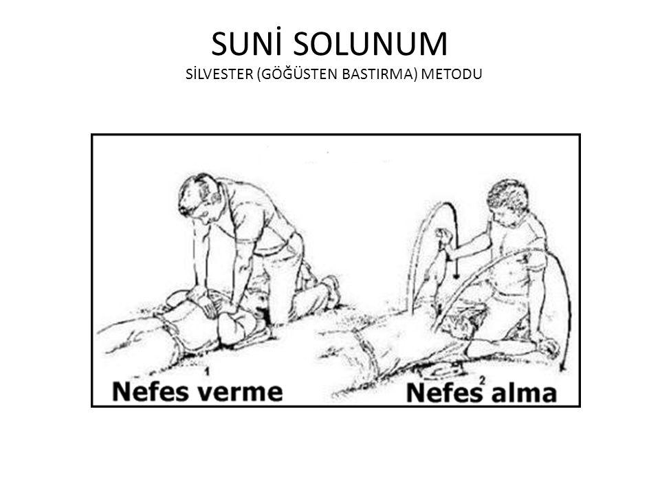 SUNİ SOLUNUM SİLVESTER (GÖĞÜSTEN BASTIRMA) METODU