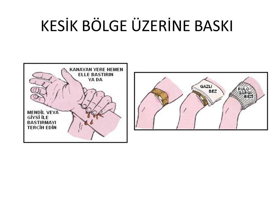 KESİK BÖLGE ÜZERİNE BASKI