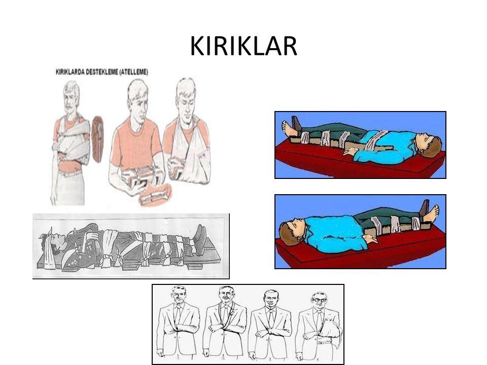 KIRIKLAR