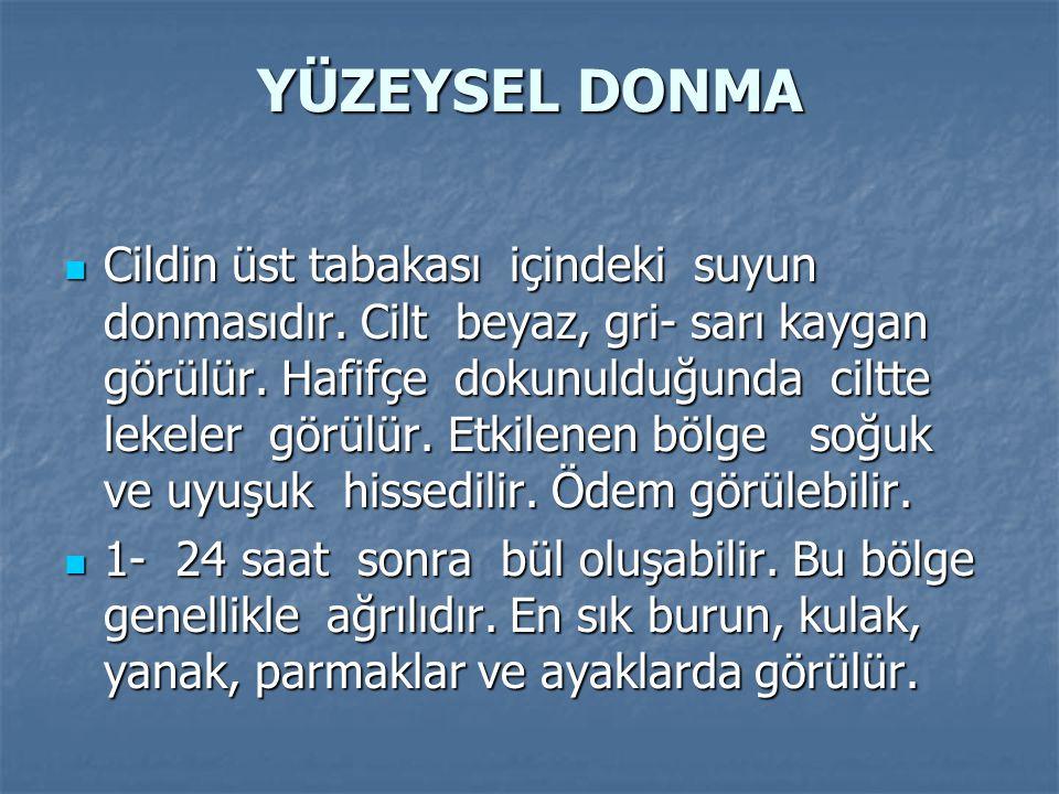 YÜZEYSEL DONMA