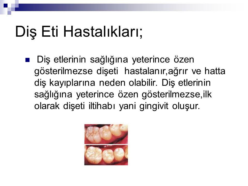 Diş Eti Hastalıkları;