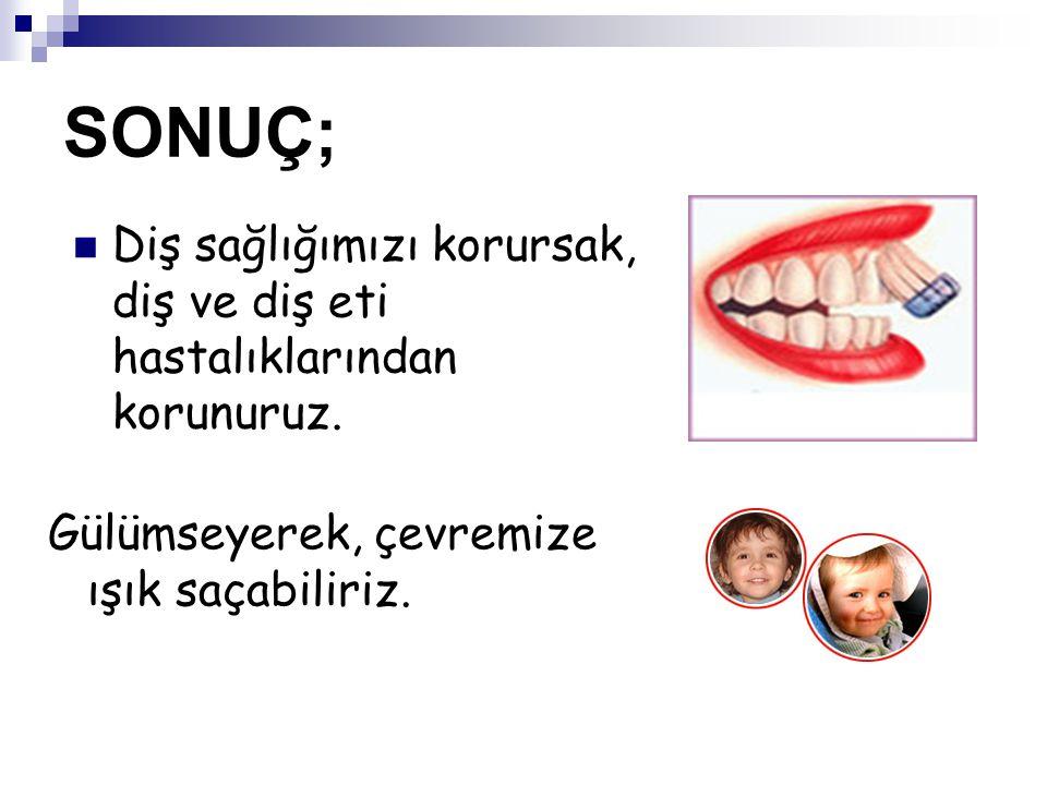 SONUÇ; Diş sağlığımızı korursak, diş ve diş eti hastalıklarından korunuruz.