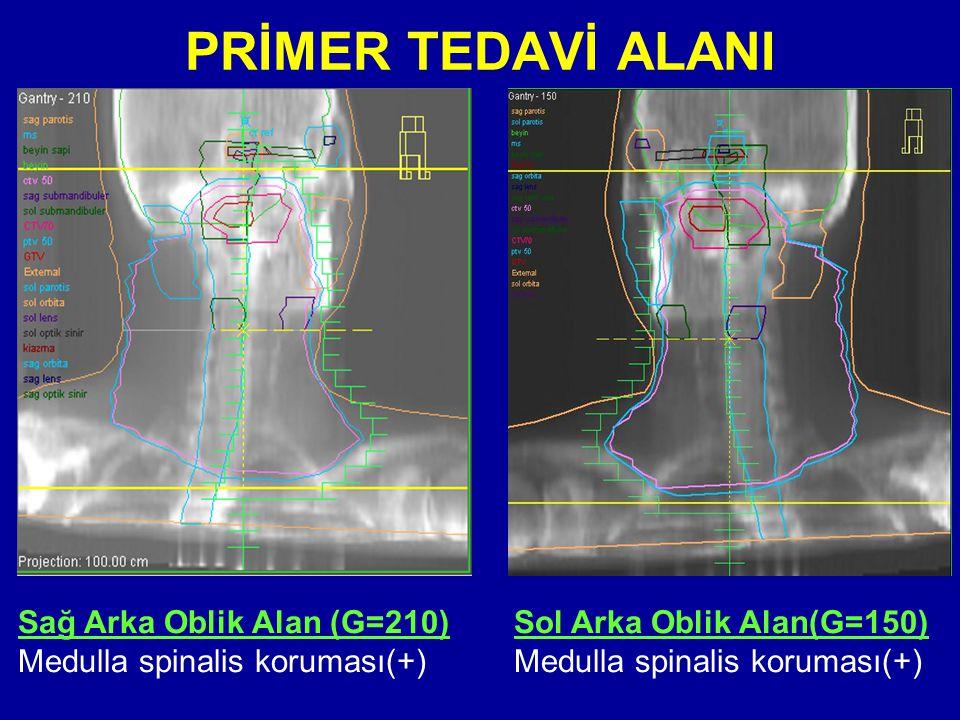 PRİMER TEDAVİ ALANI Sağ Arka Oblik Alan (G=210)