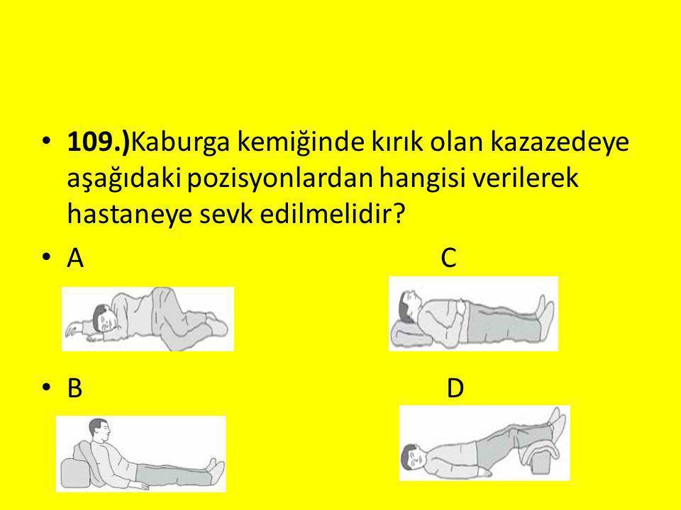 109.)Kaburga kemiğinde kırık olan kazazedeye aşağıdaki pozisyonlardan hangisi verilerek hastaneye sevk edilmelidir