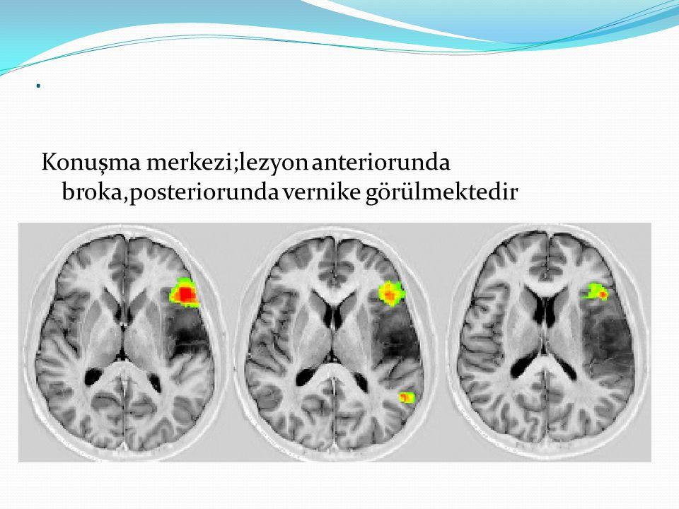 . Konuşma merkezi;lezyon anteriorunda broka,posteriorunda vernike görülmektedir