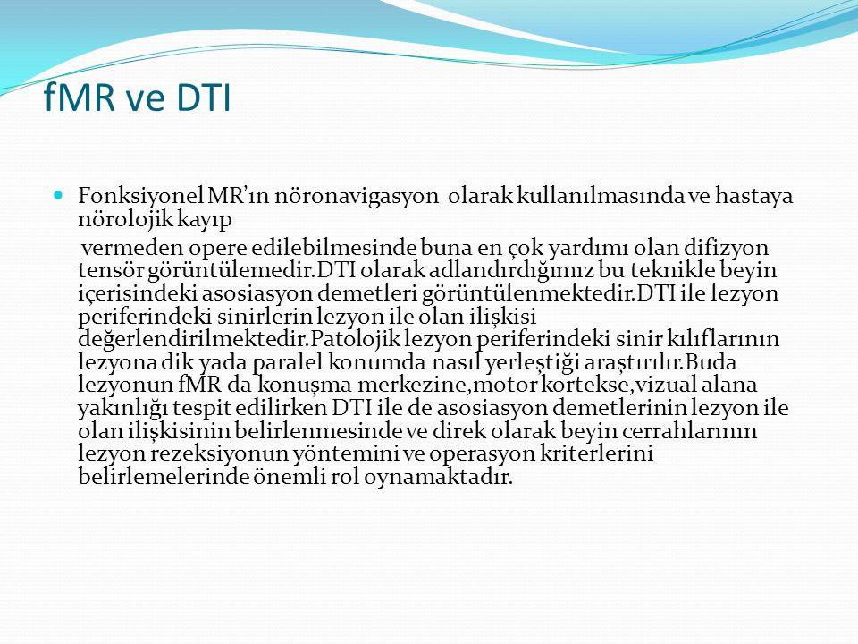 fMR ve DTI Fonksiyonel MR'ın nöronavigasyon olarak kullanılmasında ve hastaya nörolojik kayıp.