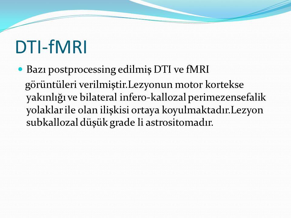 DTI-fMRI Bazı postprocessing edilmiş DTI ve fMRI