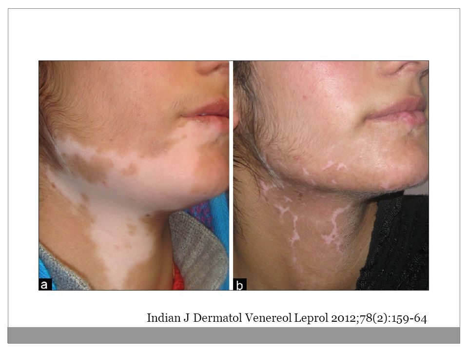 Indian J Dermatol Venereol Leprol 2012;78(2):159-64