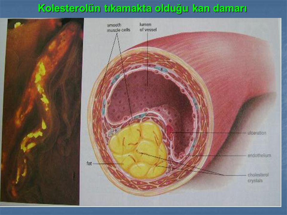 Kolesterolün tıkamakta olduğu kan damarı