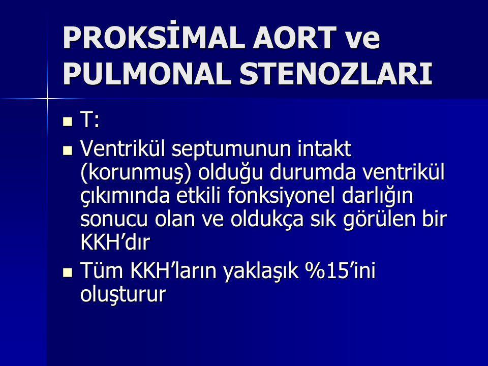 PROKSİMAL AORT ve PULMONAL STENOZLARI
