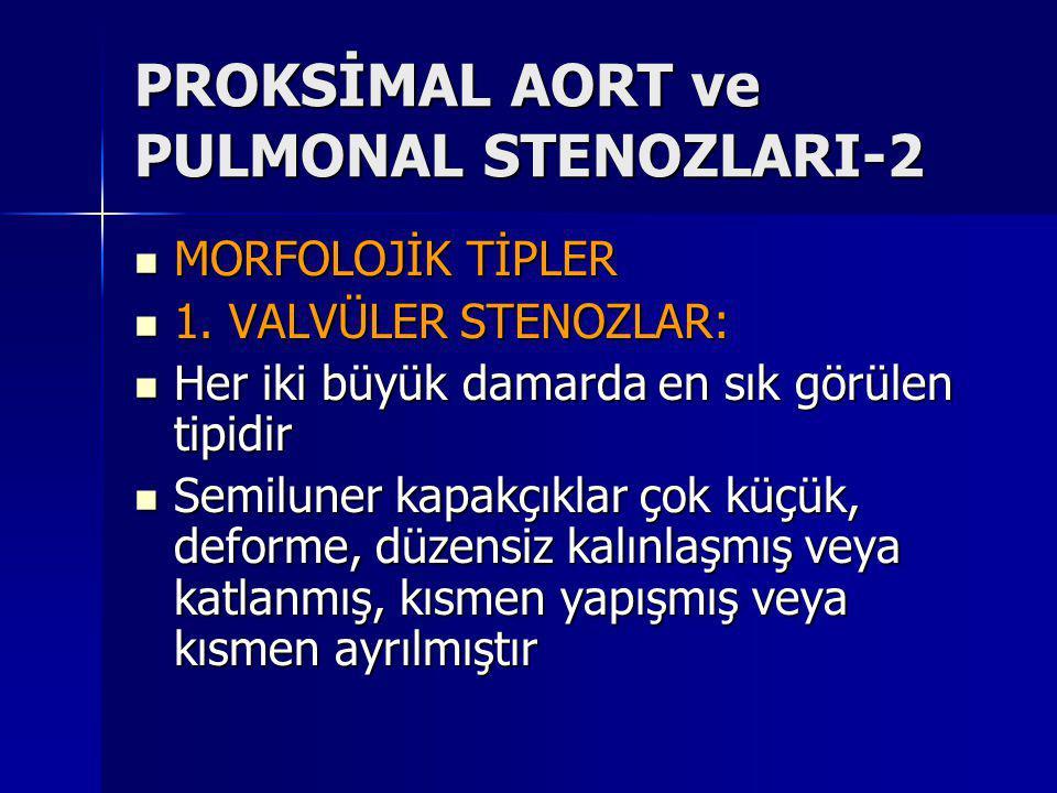 PROKSİMAL AORT ve PULMONAL STENOZLARI-2