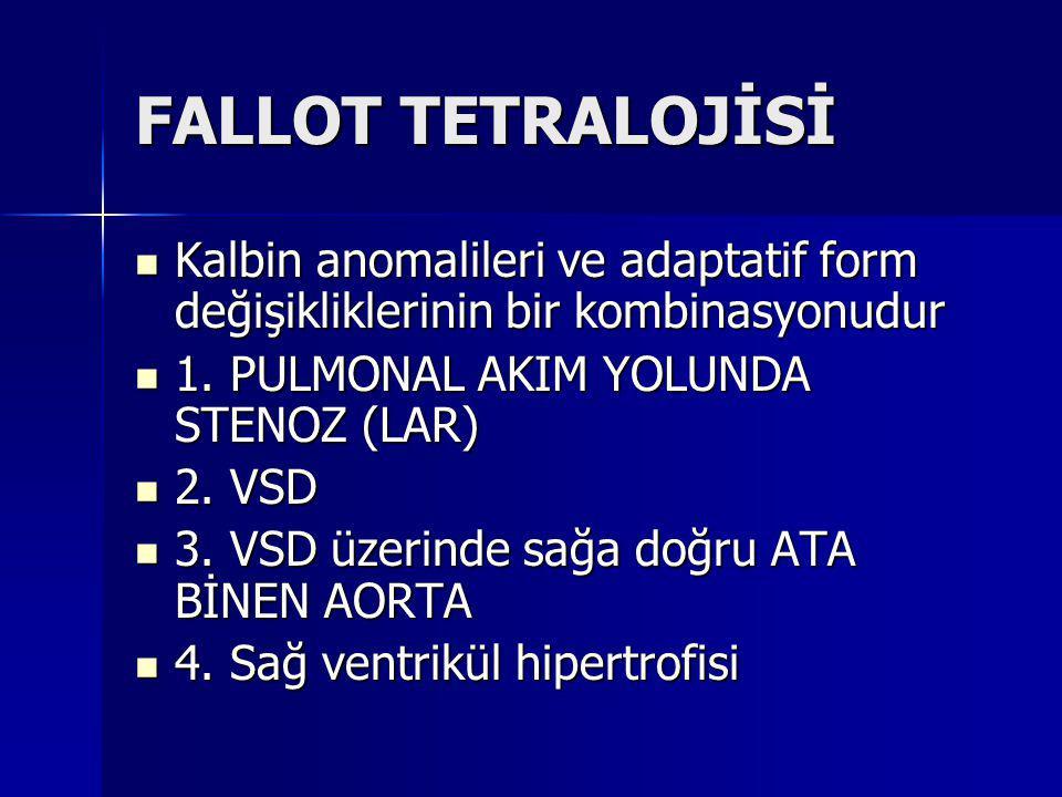FALLOT TETRALOJİSİ Kalbin anomalileri ve adaptatif form değişikliklerinin bir kombinasyonudur. 1. PULMONAL AKIM YOLUNDA STENOZ (LAR)