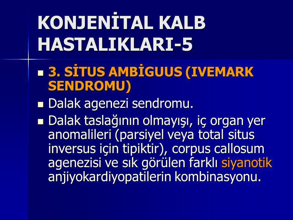 KONJENİTAL KALB HASTALIKLARI-5