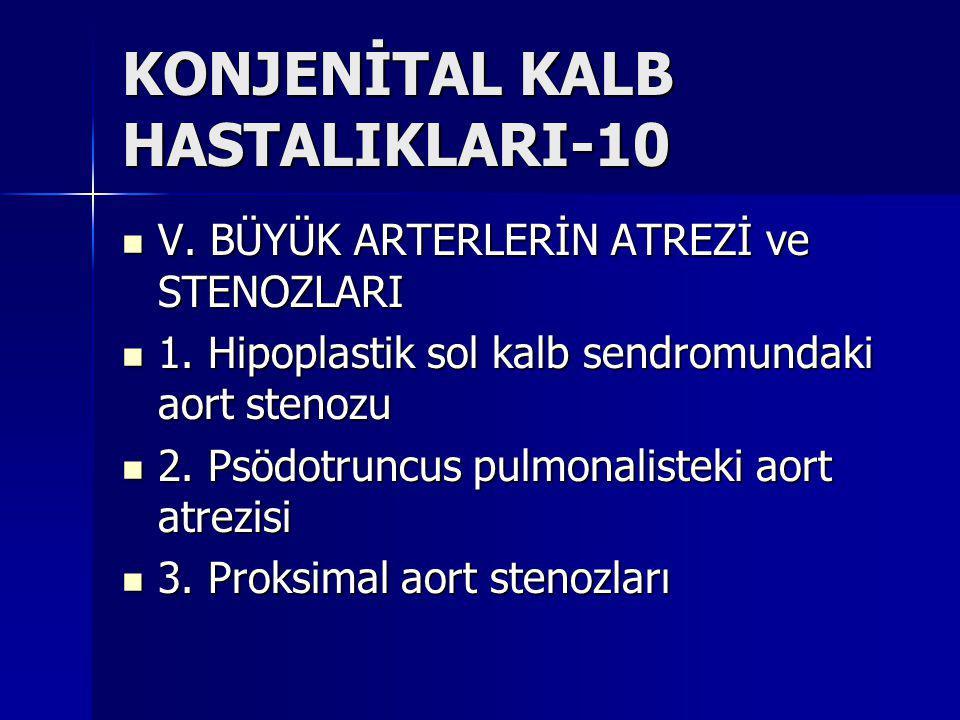 KONJENİTAL KALB HASTALIKLARI-10