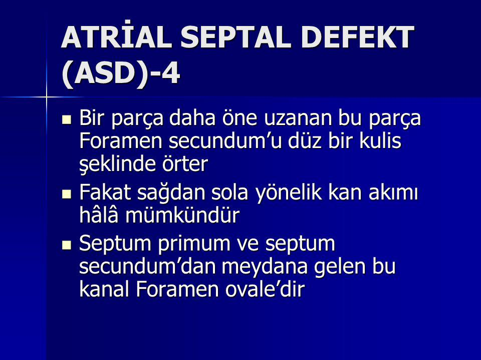 ATRİAL SEPTAL DEFEKT (ASD)-4