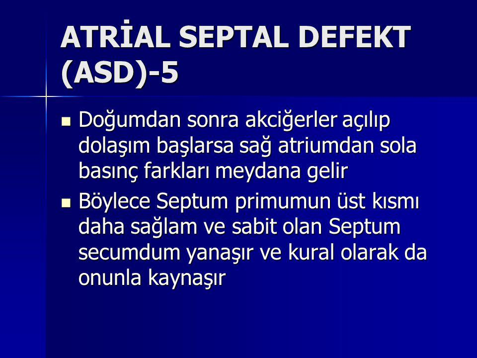 ATRİAL SEPTAL DEFEKT (ASD)-5