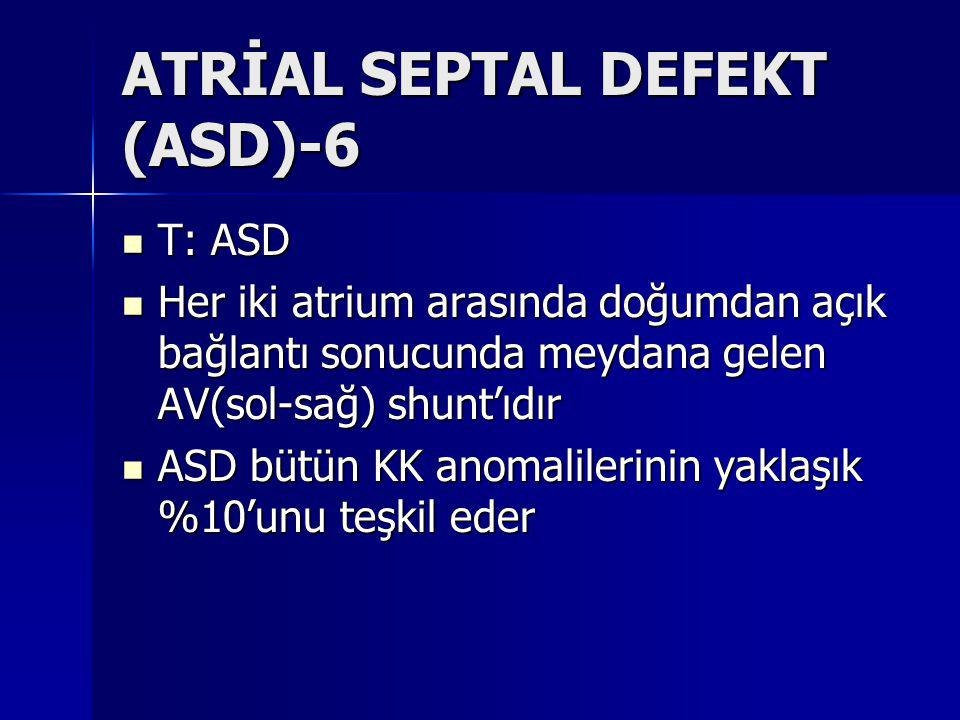 ATRİAL SEPTAL DEFEKT (ASD)-6