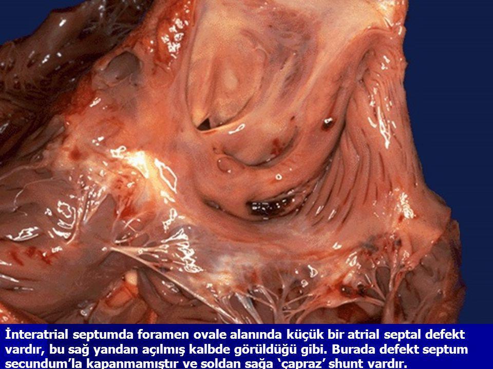 İnteratrial septumda foramen ovale alanında küçük bir atrial septal defekt vardır, bu sağ yandan açılmış kalbde görüldüğü gibi.