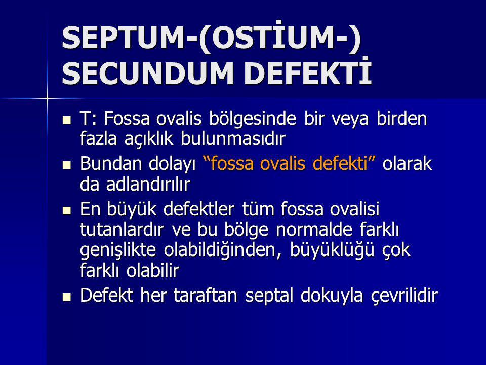 SEPTUM-(OSTİUM-) SECUNDUM DEFEKTİ