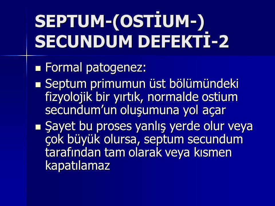 SEPTUM-(OSTİUM-) SECUNDUM DEFEKTİ-2