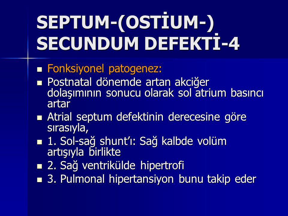 SEPTUM-(OSTİUM-) SECUNDUM DEFEKTİ-4