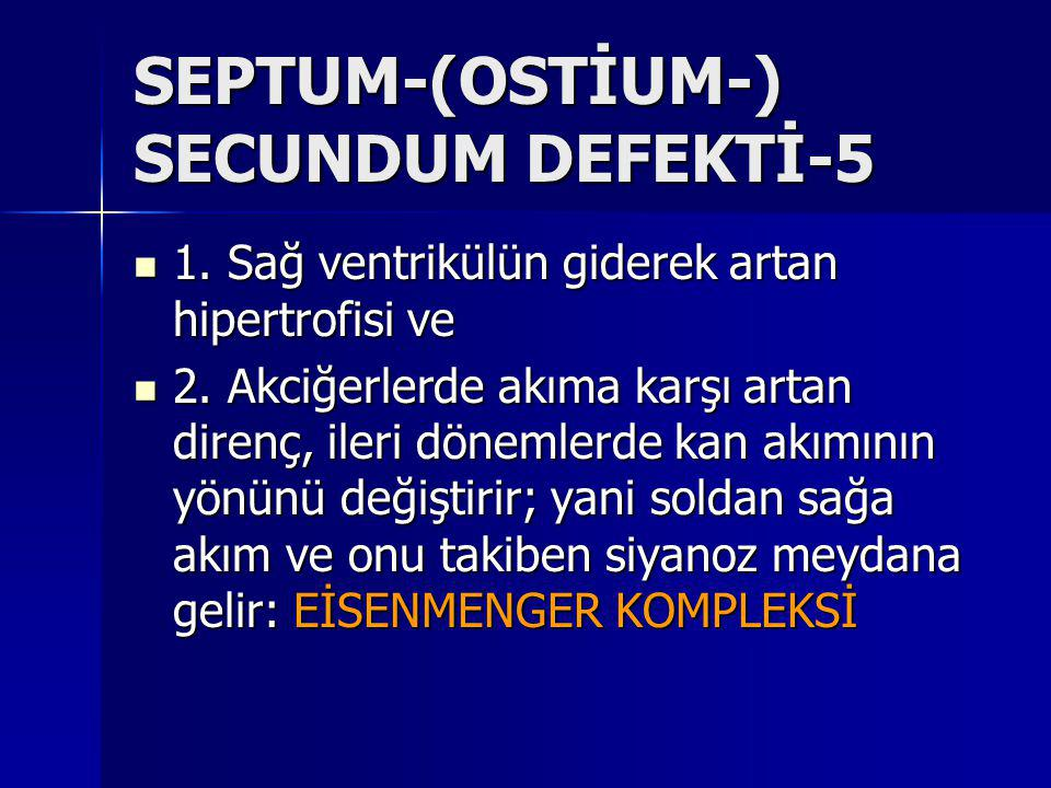SEPTUM-(OSTİUM-) SECUNDUM DEFEKTİ-5