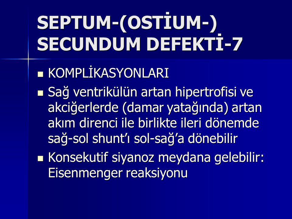 SEPTUM-(OSTİUM-) SECUNDUM DEFEKTİ-7