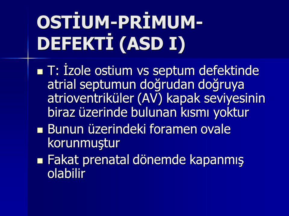 OSTİUM-PRİMUM-DEFEKTİ (ASD I)