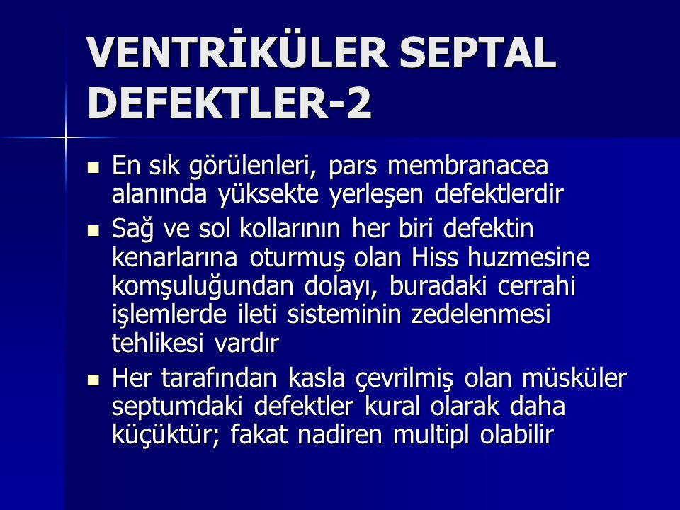 VENTRİKÜLER SEPTAL DEFEKTLER-2