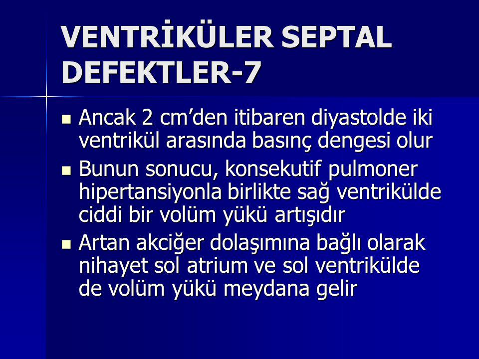 VENTRİKÜLER SEPTAL DEFEKTLER-7