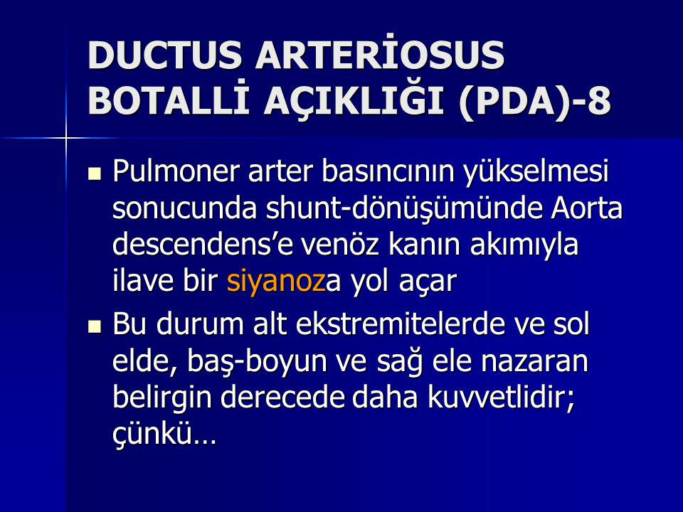 DUCTUS ARTERİOSUS BOTALLİ AÇIKLIĞI (PDA)-8