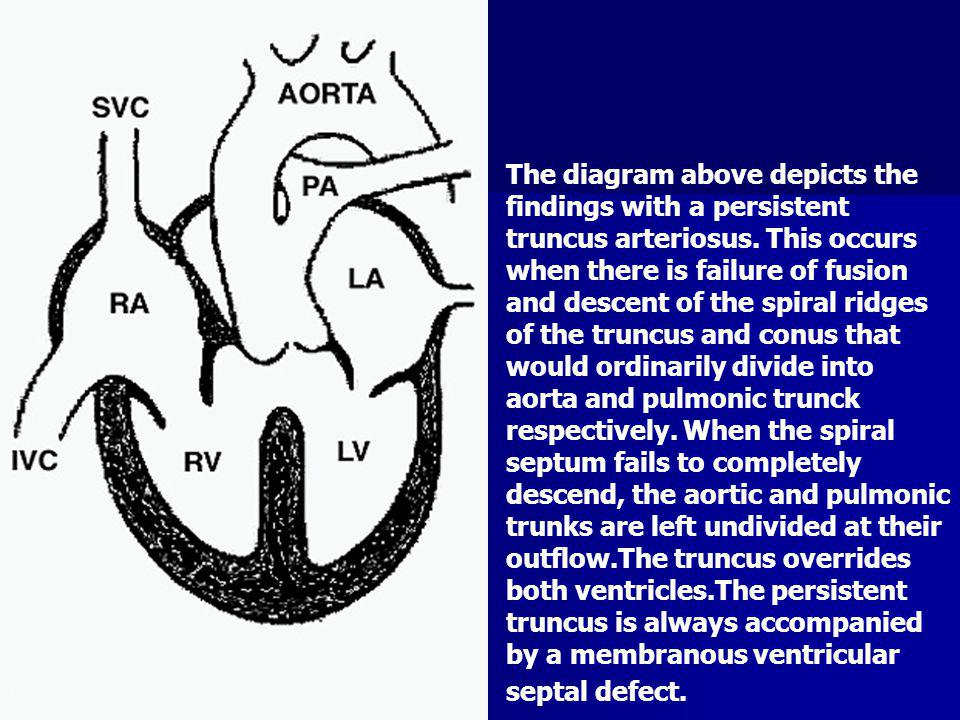 The diagram above depicts the findings with a persistent truncus arteriosus.