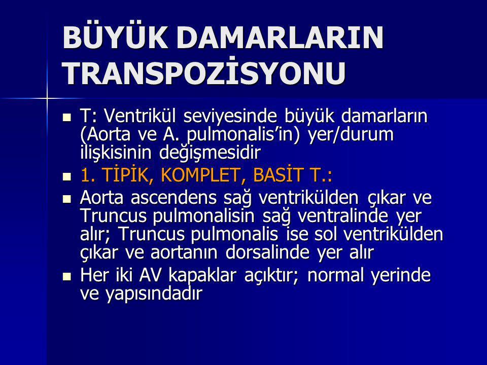 BÜYÜK DAMARLARIN TRANSPOZİSYONU