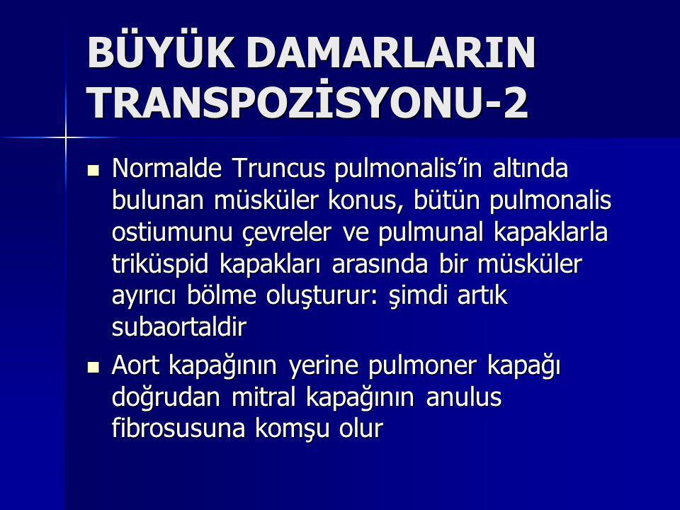 BÜYÜK DAMARLARIN TRANSPOZİSYONU-2