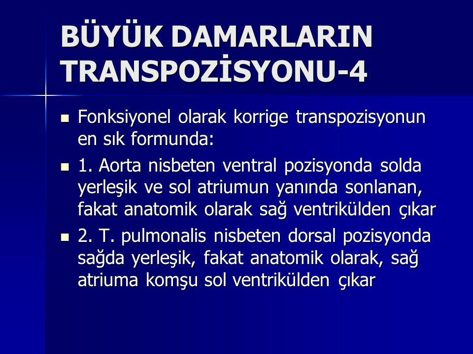 BÜYÜK DAMARLARIN TRANSPOZİSYONU-4