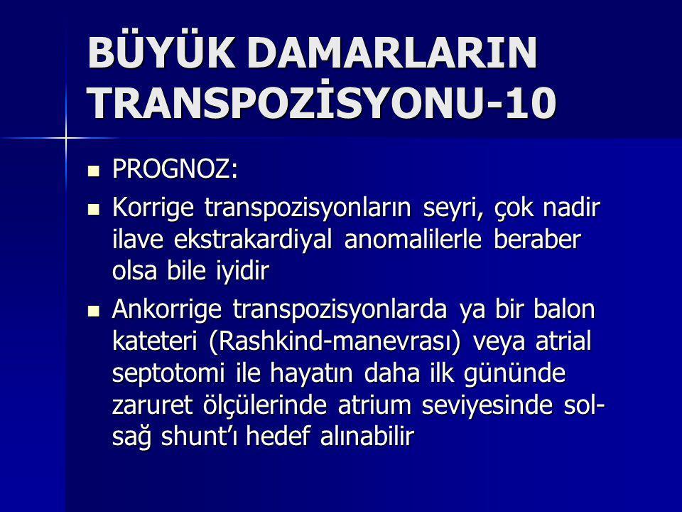BÜYÜK DAMARLARIN TRANSPOZİSYONU-10