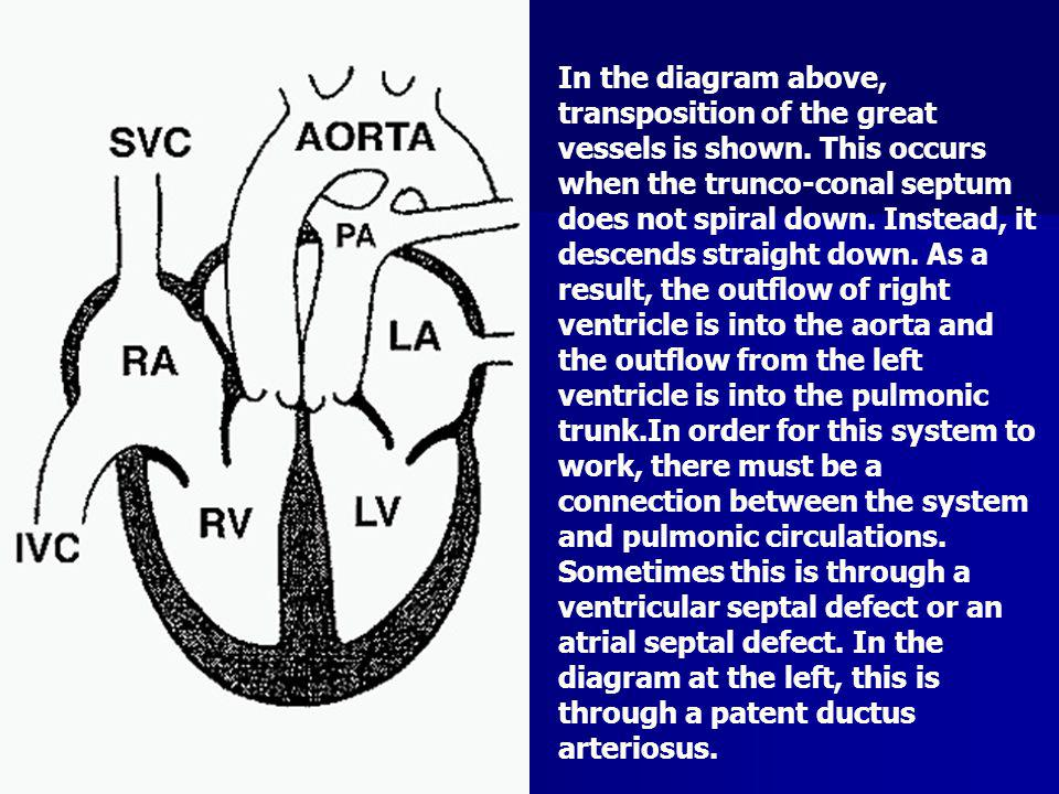 In the diagram above, transposition of the great vessels is shown