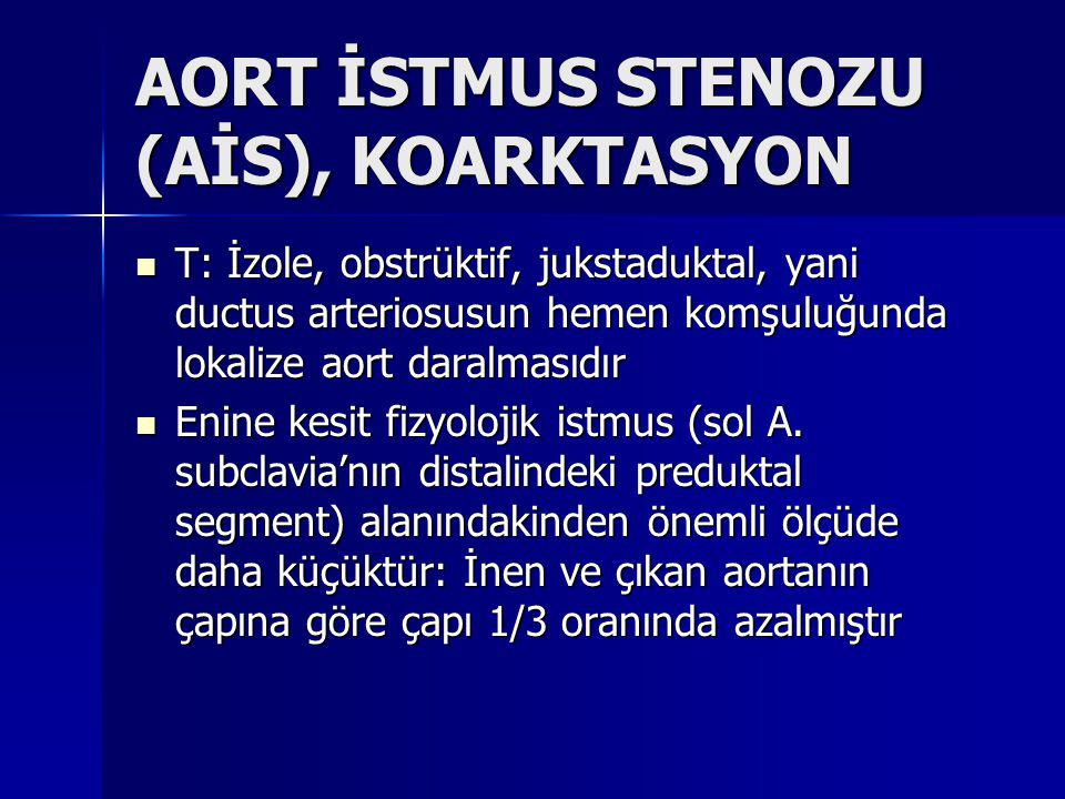 AORT İSTMUS STENOZU (AİS), KOARKTASYON