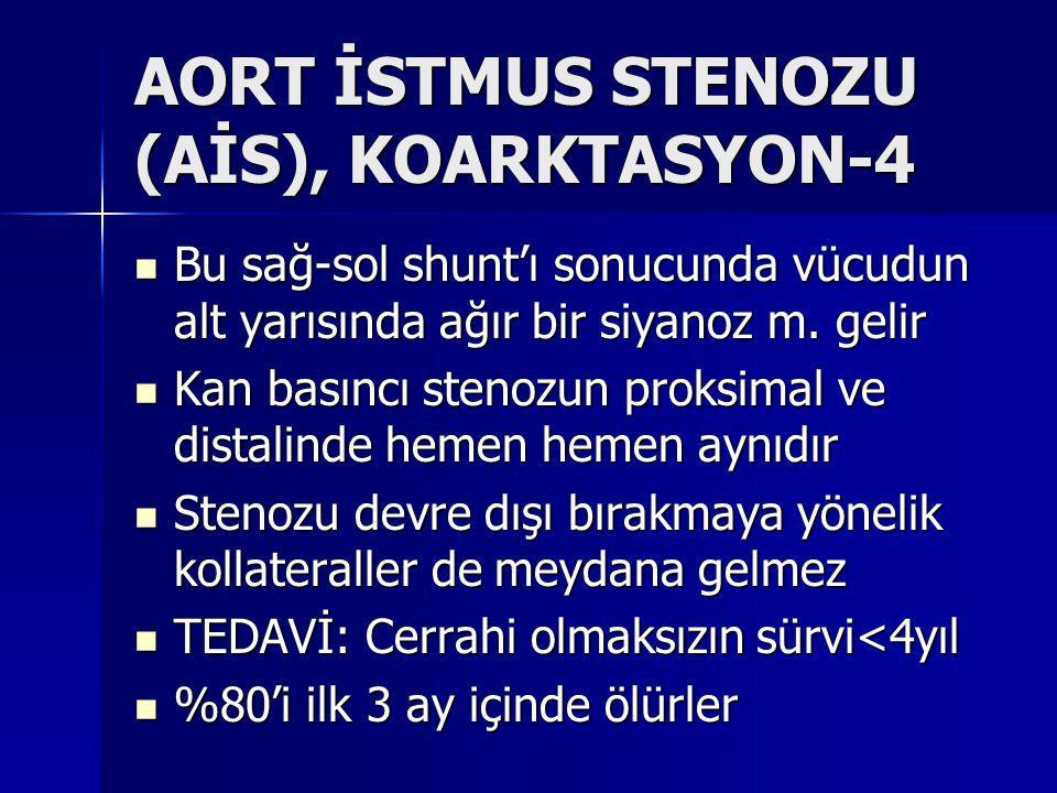 AORT İSTMUS STENOZU (AİS), KOARKTASYON-4