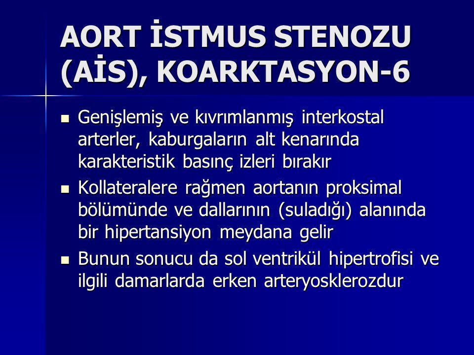 AORT İSTMUS STENOZU (AİS), KOARKTASYON-6