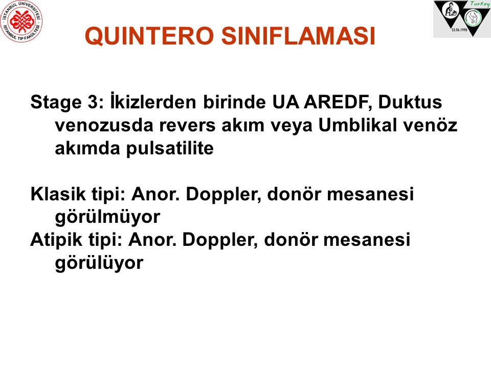 QUINTERO SINIFLAMASI Stage 3: İkizlerden birinde UA AREDF, Duktus venozusda revers akım veya Umblikal venöz akımda pulsatilite.