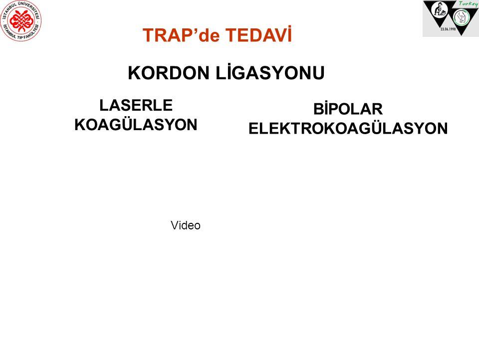 TRAP'de TEDAVİ KORDON LİGASYONU LASERLE BİPOLAR KOAGÜLASYON