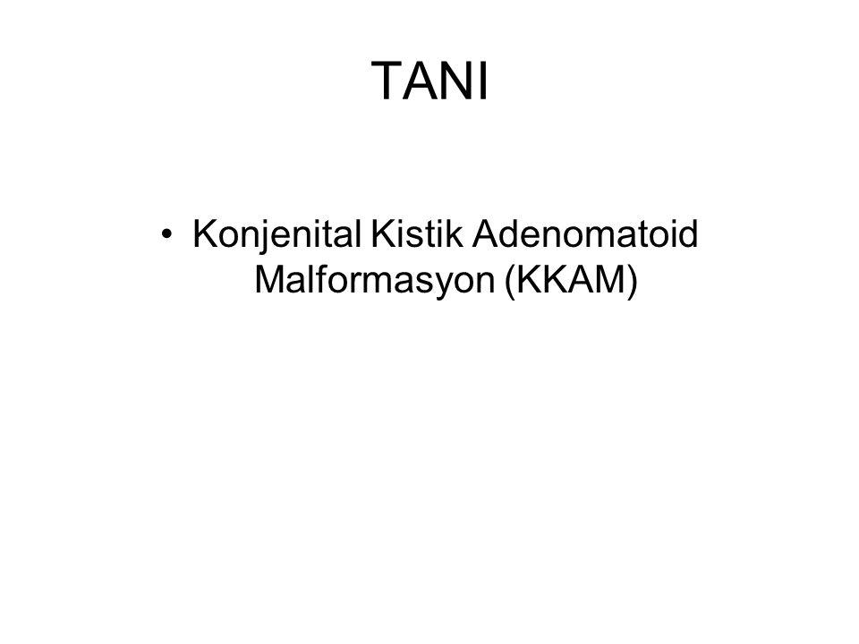 Konjenital Kistik Adenomatoid Malformasyon (KKAM)
