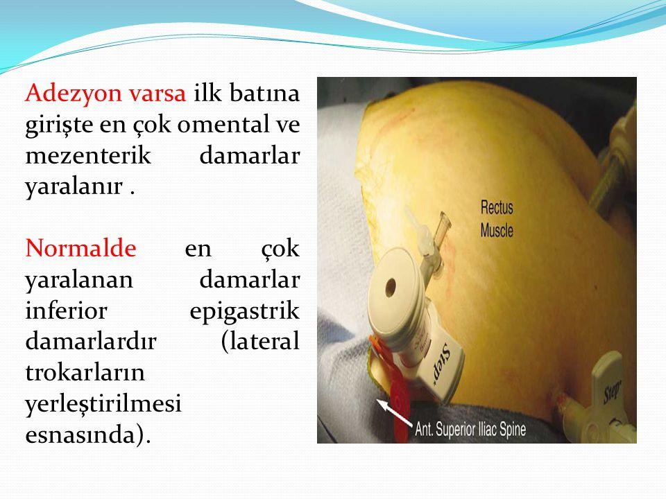 Adezyon varsa ilk batına girişte en çok omental ve mezenterik damarlar yaralanır .