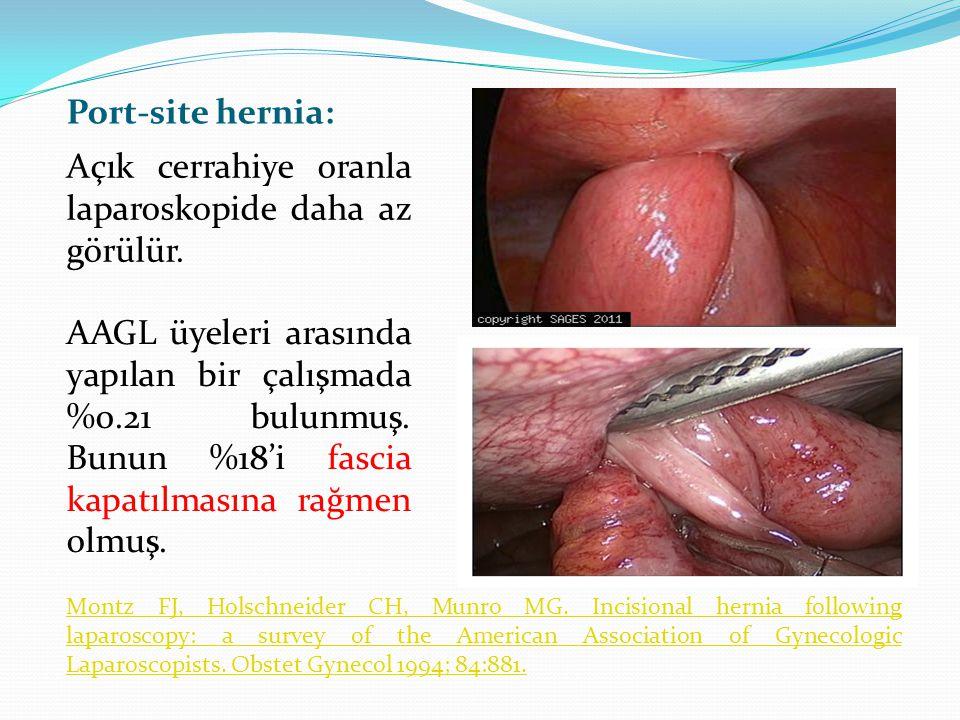 Açık cerrahiye oranla laparoskopide daha az görülür.