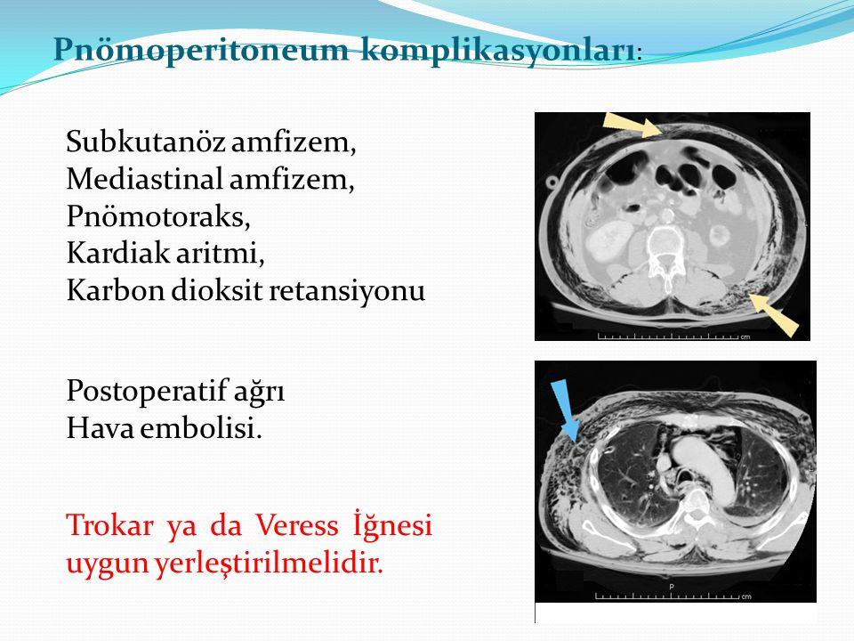 Pnömoperitoneum komplikasyonları: